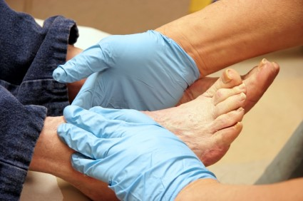 diabetic foot care3