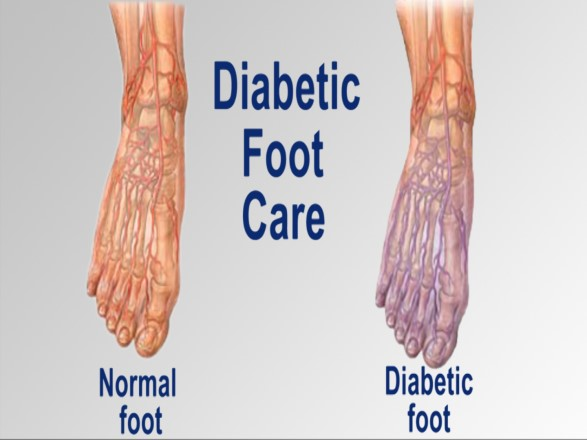 diabetic foot care4