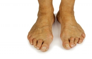 Bunions can be Lead to a Bad Condition